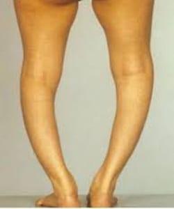 braki wapnia i magnezu mogą się objawiać deformacją sylwetki